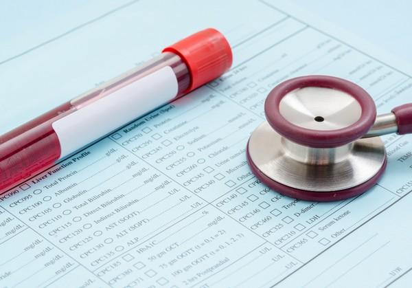 不育症 血液検査
