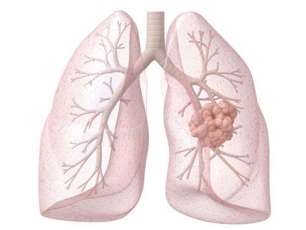 肺がんステージ3aとは