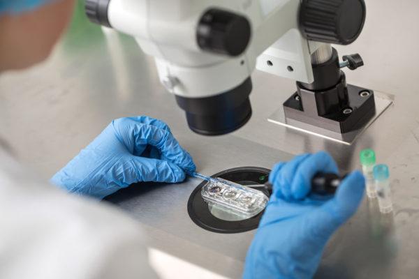 精子スクリーニング検査