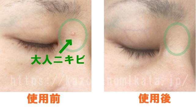 ラミューテの美肌スターターキットの使用前と使用後の画像